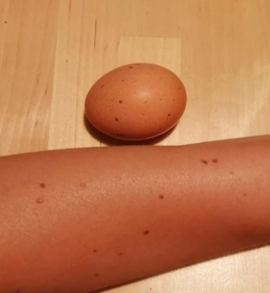 This egg looks like my skin